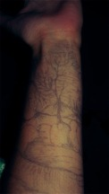 mountains and flowers on my arm 2013